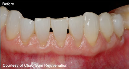 Pinhole Surgical Technique Pst Gum Rejuvenation Edison